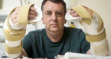 Gran Bretaña: Paciente se recupera de trasplante de manos